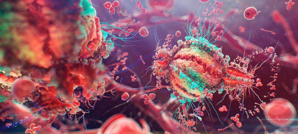 ЧТО ТАКОЕ ВИЧ ИНФЕКЦИЯ И СПИД ВИЧ инфекция это хроническое заболевание возбудителем которого является ВИЧ Заболевание развивается очень медленно последняя стадия развития